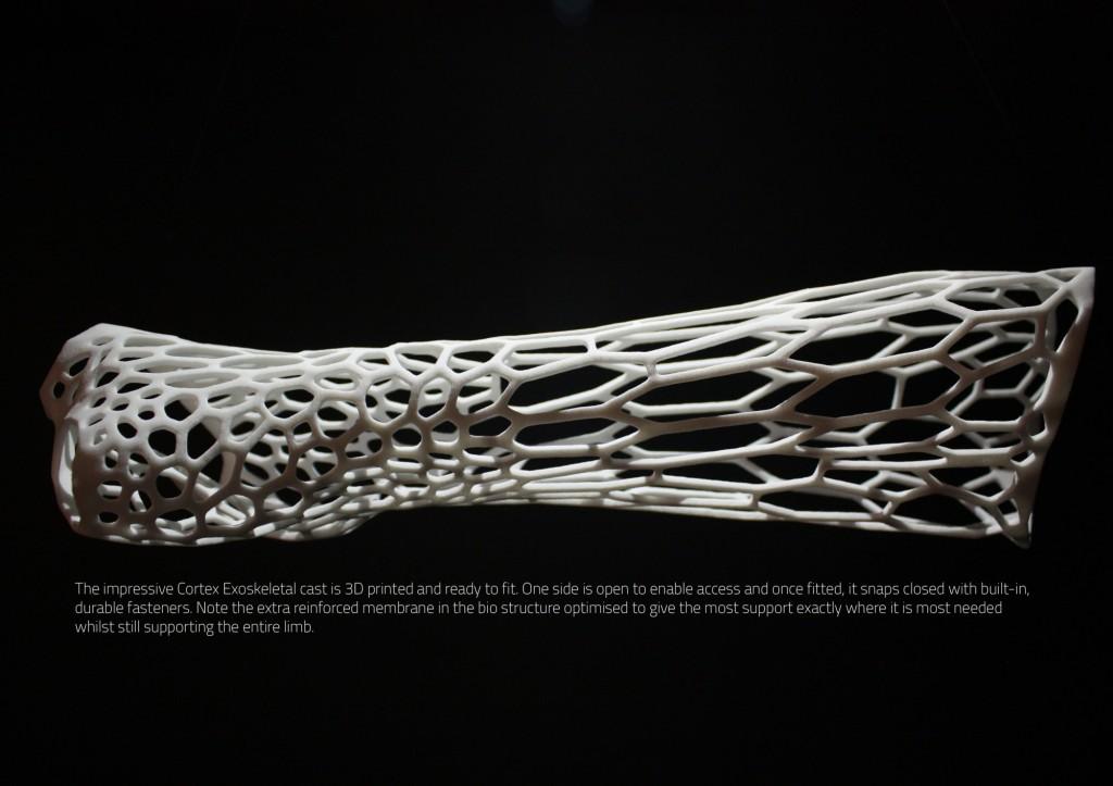exoskeletal_arm_3d_print